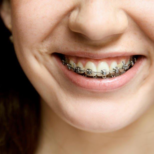 Dental Braces St. Albert